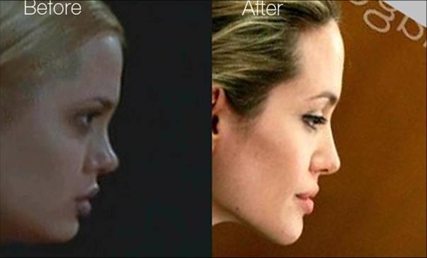 Хирургия анджелина джоли до и после