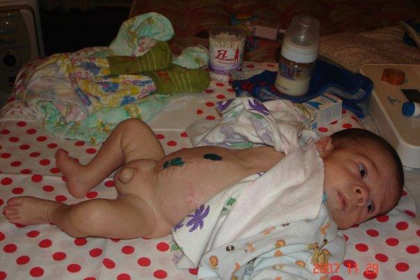 Фото детей рожденных в 30 недель беременности