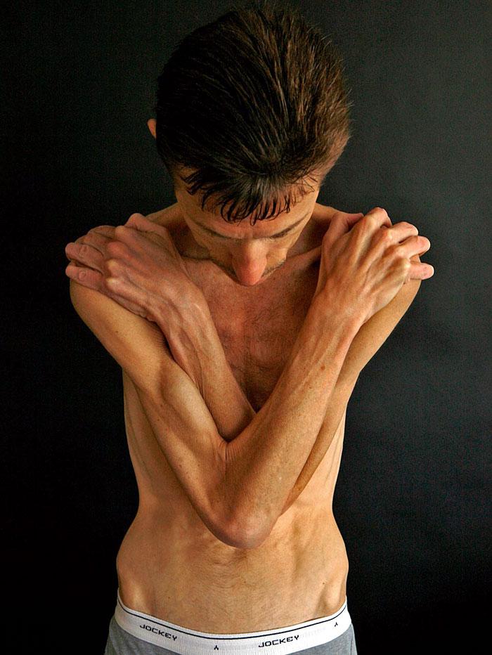 Очень Сильное Похудение Болезнь. Основные причины, от чего может худеть человек